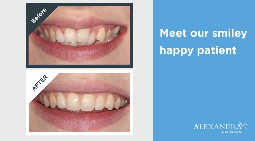 Straighter Teeth 5 - Blog Header-01