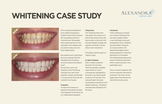 White Teeth A Case Study Alexandra Dental Care Dentist Burton